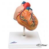 Классическая модель сердца с гипертрофией левого желудочка, 2 части