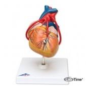 Классическая модель сердца с шунтом, 2 части