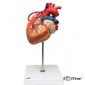 Модель сердца с шунтами, 2-кратное увеличение, 4 части