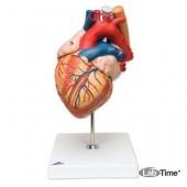 Модель сердца с пищеводом и трахеей, 2-кратное увеличение, 5 частей