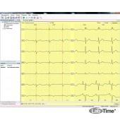 Электрокардиограф 15-канальный Поли-Спектр+(12/Е)